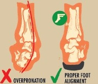 overpronation-ankle